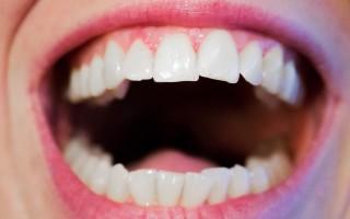 Почему ощущается привкус соды во рту