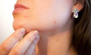 Очищение и уход за кожей лица содой: совет косметолога