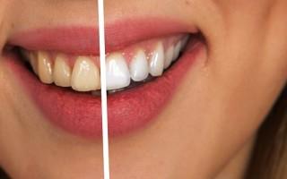 Как сохранить здоровье зубов с помощью соды – советы и рекомендации